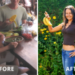 Hypothyroidism Weight Loss- Before & After Story